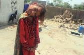 دختر 11 سالهای که گردن 90 درجه دارد+تصاویر